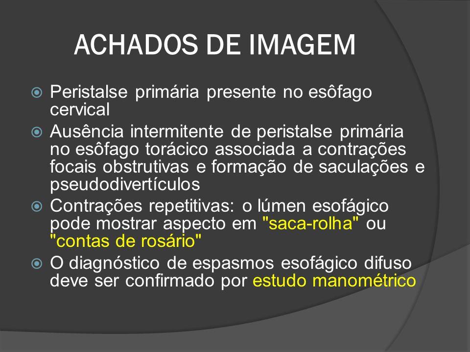 ACHADOS DE IMAGEM Peristalse primária presente no esôfago cervical Ausência intermitente de peristalse primária no esôfago torácico associada a contra