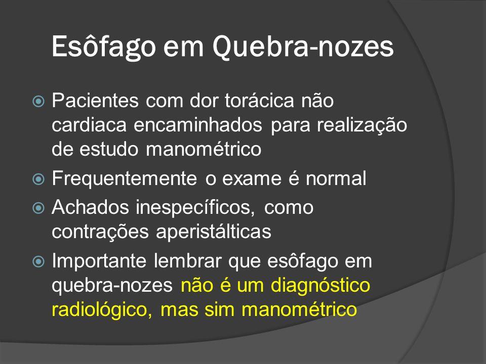 Esôfago em Quebra-nozes Pacientes com dor torácica não cardiaca encaminhados para realização de estudo manométrico Frequentemente o exame é normal Ach