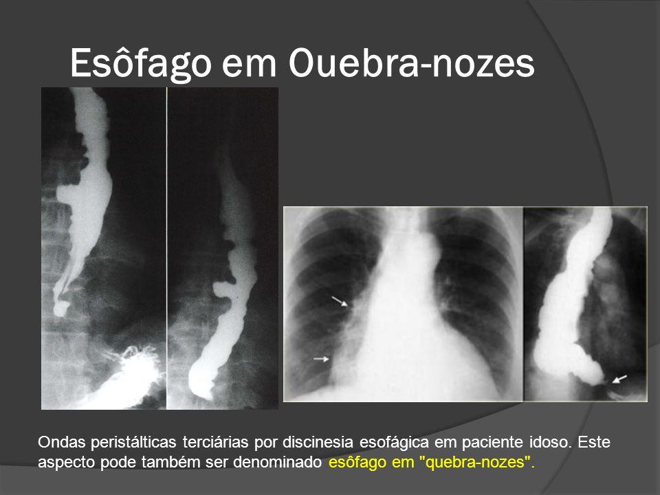 Esôfago em Ouebra-nozes Ondas peristálticas terciárias por discinesia esofágica em paciente idoso. Este aspecto pode também ser denominado esôfago em