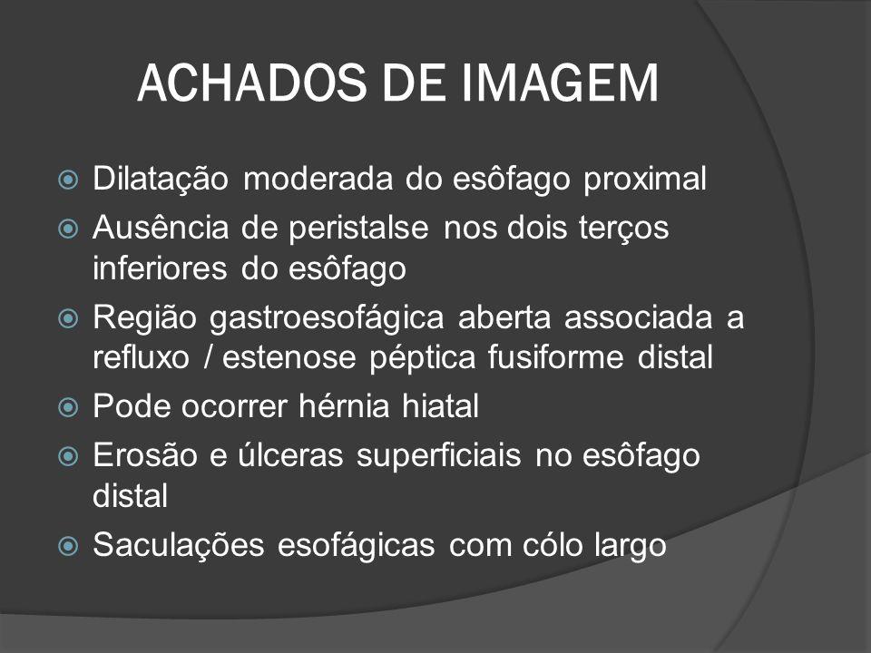 ACHADOS DE IMAGEM Dilatação moderada do esôfago proximal Ausência de peristalse nos dois terços inferiores do esôfago Região gastroesofágica aberta as