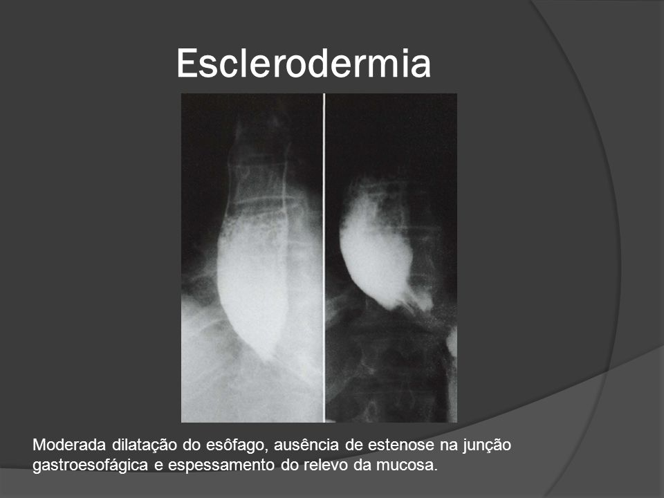 Esclerodermia Moderada dilatação do esôfago, ausência de estenose na junção gastroesofágica e espessamento do relevo da mucosa.