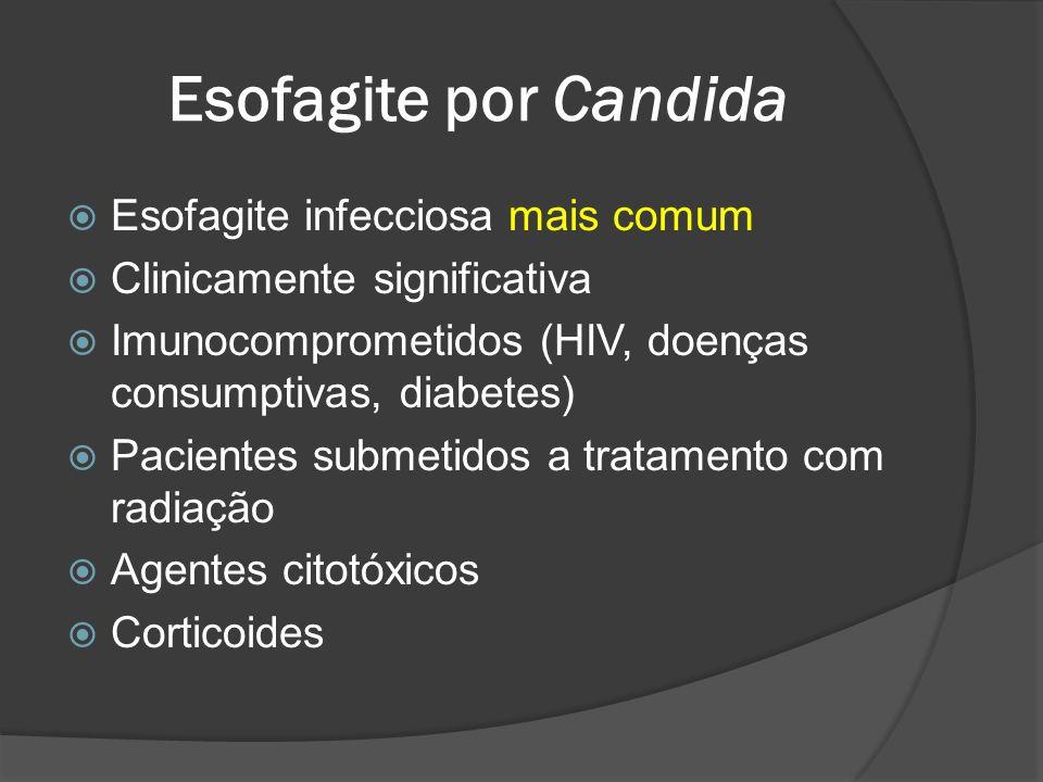 Esofagite por Candida Esofagite infecciosa mais comum Clinicamente significativa Imunocomprometidos (HIV, doenças consumptivas, diabetes) Pacientes su