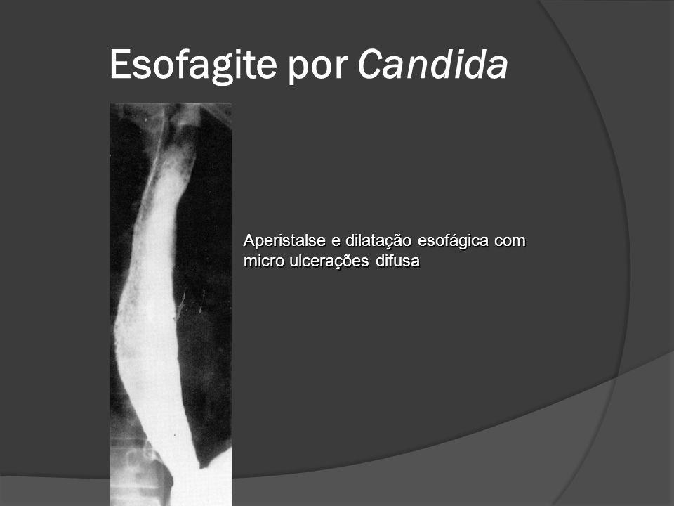Esofagite por Candida Aperistalse e dilatação esofágica com micro ulcerações difusa