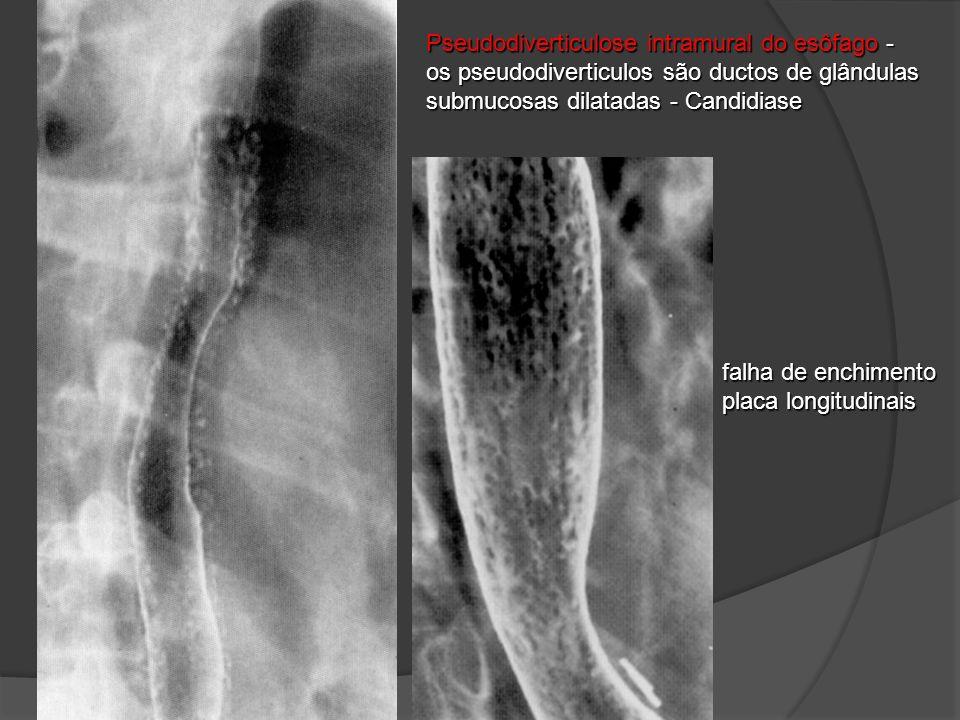 Pseudodiverticulose intramural do esôfago - os pseudodiverticulos são ductos de glândulas submucosas dilatadas - Candidiase falha de enchimento placa