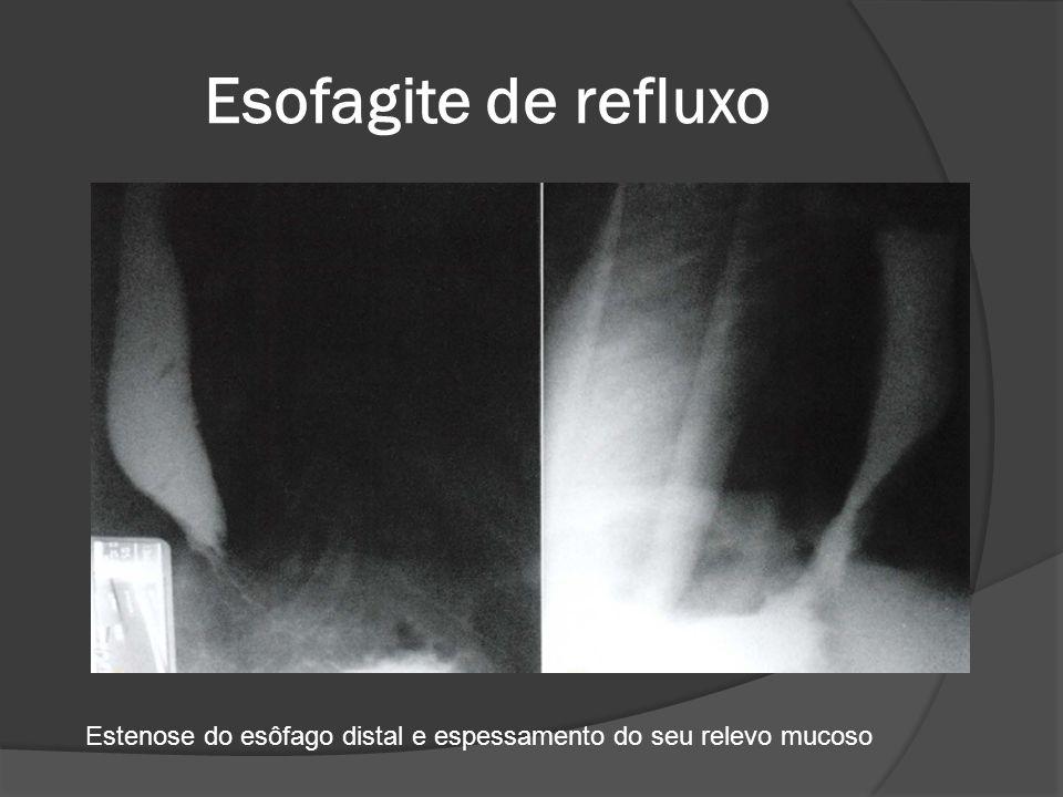 Esofagite de refluxo Estenose do esôfago distal e espessamento do seu relevo mucoso