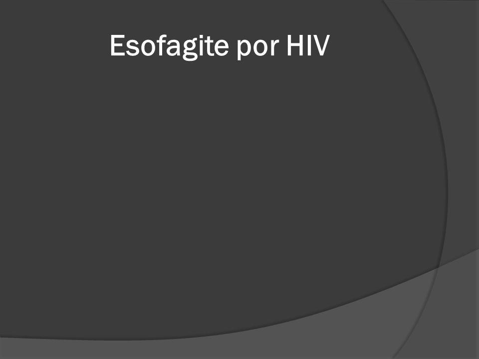 Esofagite por HIV