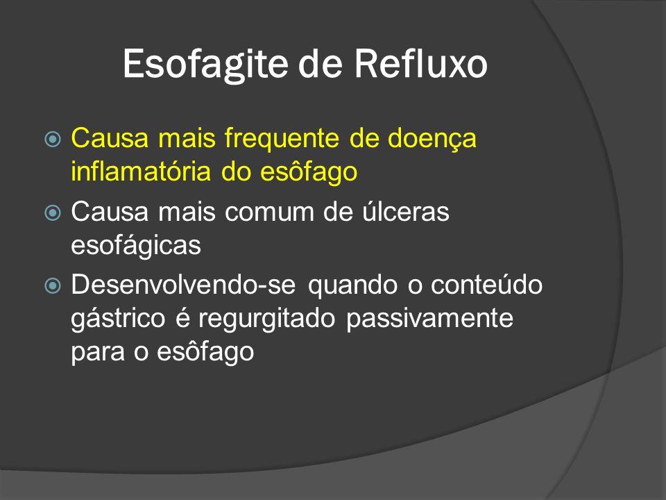 Esofagite de Refluxo Causa mais frequente de doença inflamatória do esôfago Causa mais comum de úlceras esofágicas Desenvolvendo-se quando o conteúdo
