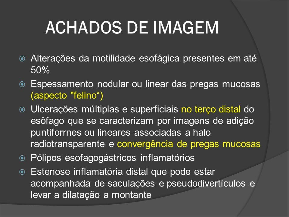 ACHADOS DE IMAGEM Alterações da motilidade esofágica presentes em até 50% Espessamento nodular ou linear das pregas mucosas (aspecto