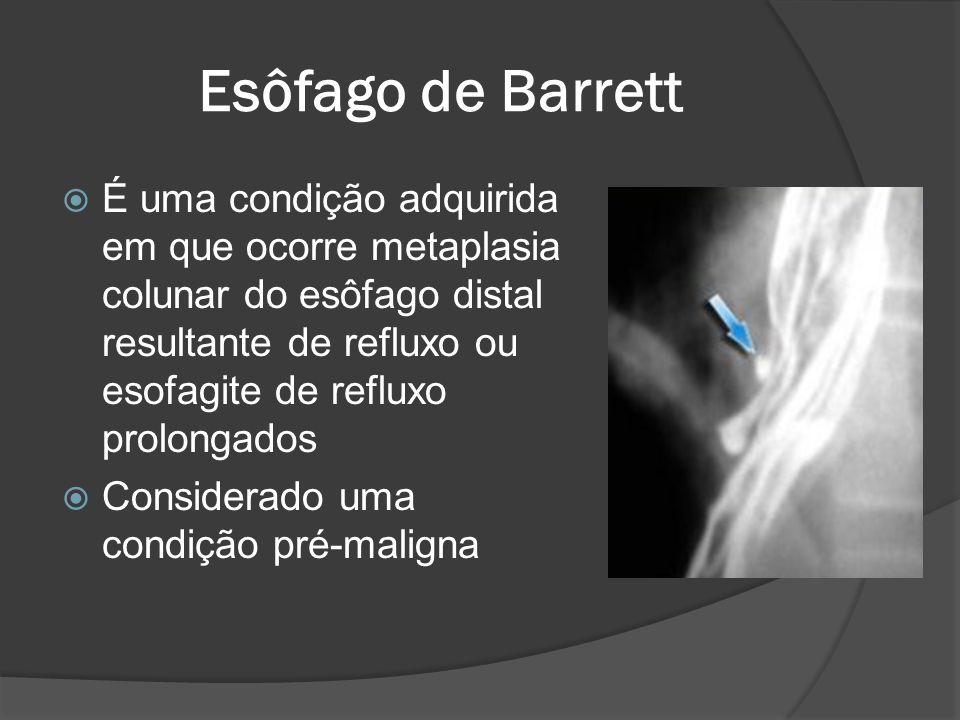 Esôfago de Barrett É uma condição adquirida em que ocorre metaplasia colunar do esôfago distal resultante de refluxo ou esofagite de refluxo prolongad