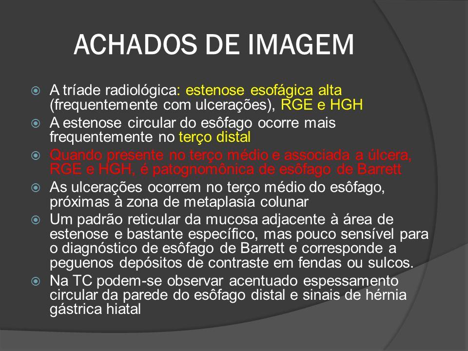 ACHADOS DE IMAGEM A tríade radiológica: estenose esofágica alta (frequentemente com ulcerações), RGE e HGH A estenose circular do esôfago ocorre mais