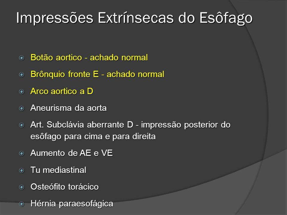 ACHADOS DE IMAGEM Alterações da motilidade esofágica presentes em até 50% Espessamento nodular ou linear das pregas mucosas (aspecto felino) Ulcerações múltiplas e superficiais no terço distal do esôfago que se caracterizam por imagens de adição puntiforrnes ou lineares associadas a halo radiotransparente e convergência de pregas mucosas Pólipos esofagogástricos inflamatórios Estenose inflamatória distal que pode estar acompanhada de saculações e pseudodivertículos e levar a dilatação a montante