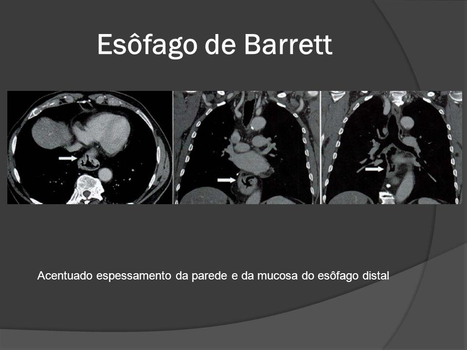 Esôfago de Barrett Acentuado espessamento da parede e da mucosa do esôfago distal