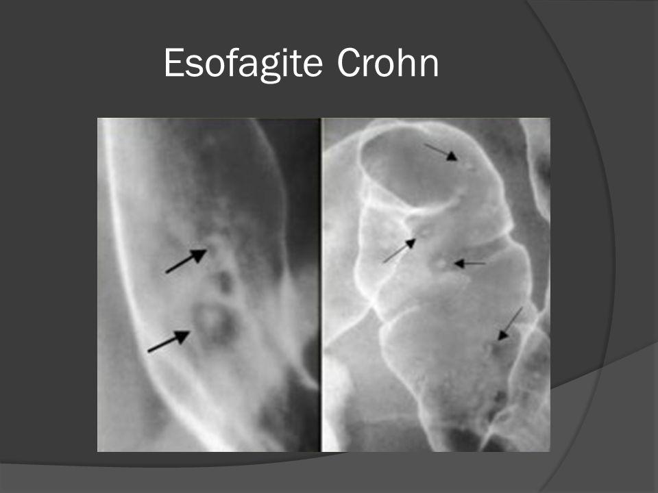 Esofagite Crohn