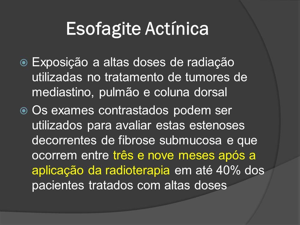 Esofagite Actínica Exposição a altas doses de radiação utilizadas no tratamento de tumores de mediastino, pulmão e coluna dorsal Os exames contrastado