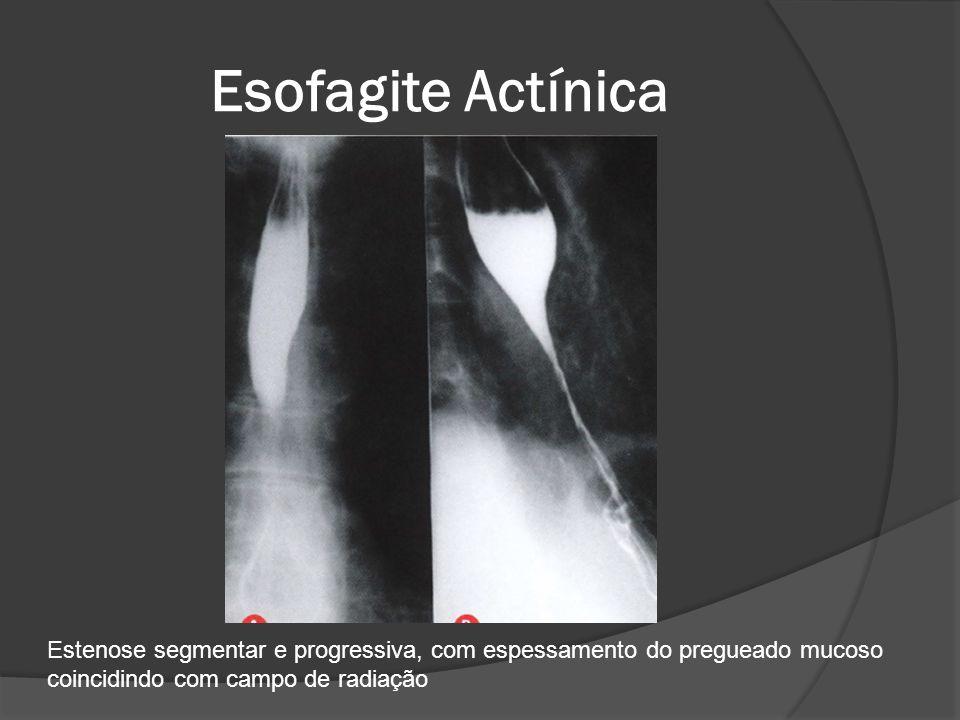 Esofagite Actínica Estenose segmentar e progressiva, com espessamento do pregueado mucoso coincidindo com campo de radiação