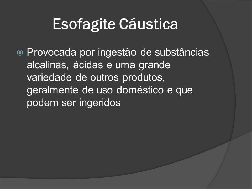 Esofagite Cáustica Provocada por ingestão de substâncias alcalinas, ácidas e uma grande variedade de outros produtos, geralmente de uso doméstico e qu