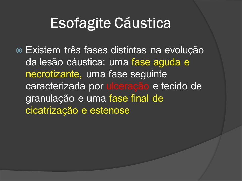 Esofagite Cáustica Existem três fases distintas na evolução da lesão cáustica: uma fase aguda e necrotizante, uma fase seguinte caracterizada por ulce