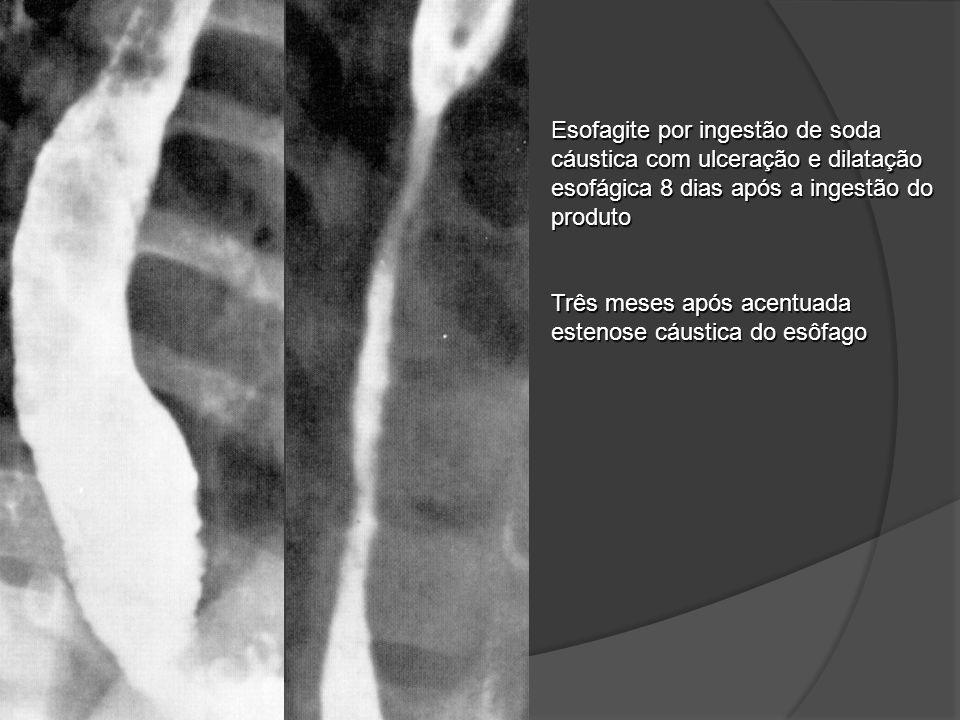Esofagite por ingestão de soda cáustica com ulceração e dilatação esofágica 8 dias após a ingestão do produto Três meses após acentuada estenose cáust