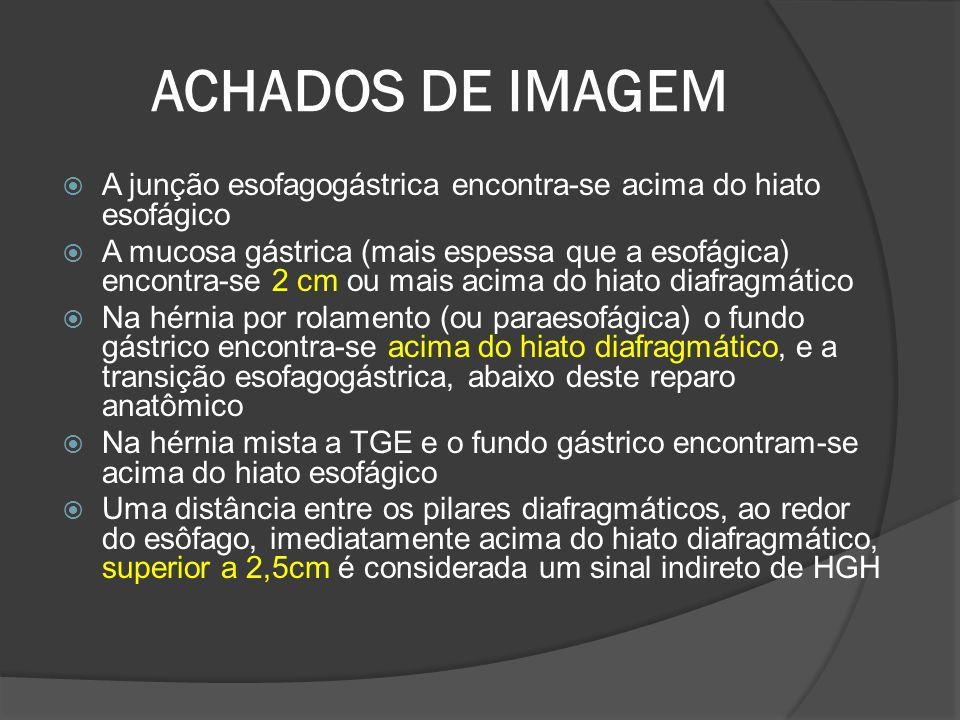 ACHADOS DE IMAGEM A junção esofagogástrica encontra-se acima do hiato esofágico A mucosa gástrica (mais espessa que a esofágica) encontra-se 2 cm ou m