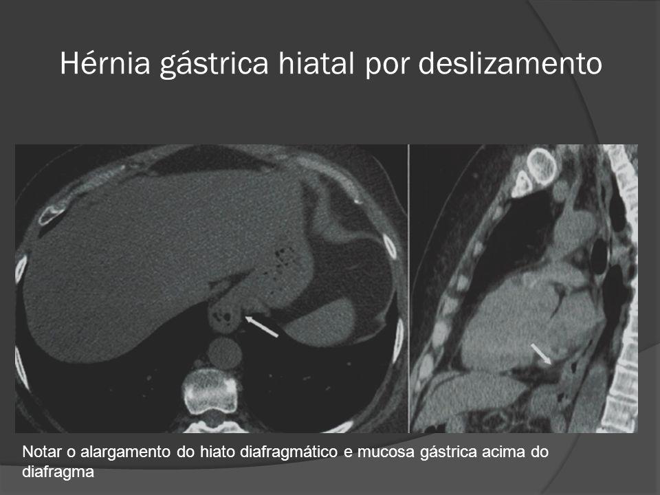 Hérnia gástrica hiatal por deslizamento Notar o alargamento do hiato diafragmático e mucosa gástrica acima do diafragma