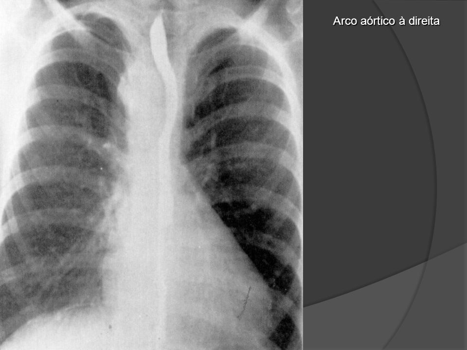 Carcinoma Espinocelular (Carcinoma de Células Escamosas) Pacientes com CEC de esôfago distal envolvendo a aorta com um ângulo maior que 90 graus, indicando infiltração do vaso e com mínimo contato com a aorta descendente, o que indica não haver infiltração do vaso.