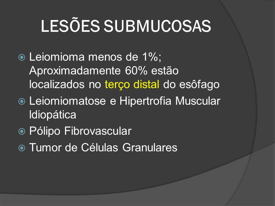 LESÕES SUBMUCOSAS Leiomioma menos de 1%; Aproximadamente 60% estão localizados no terço distal do esôfago Leiomiomatose e Hipertrofia Muscular ldiopát
