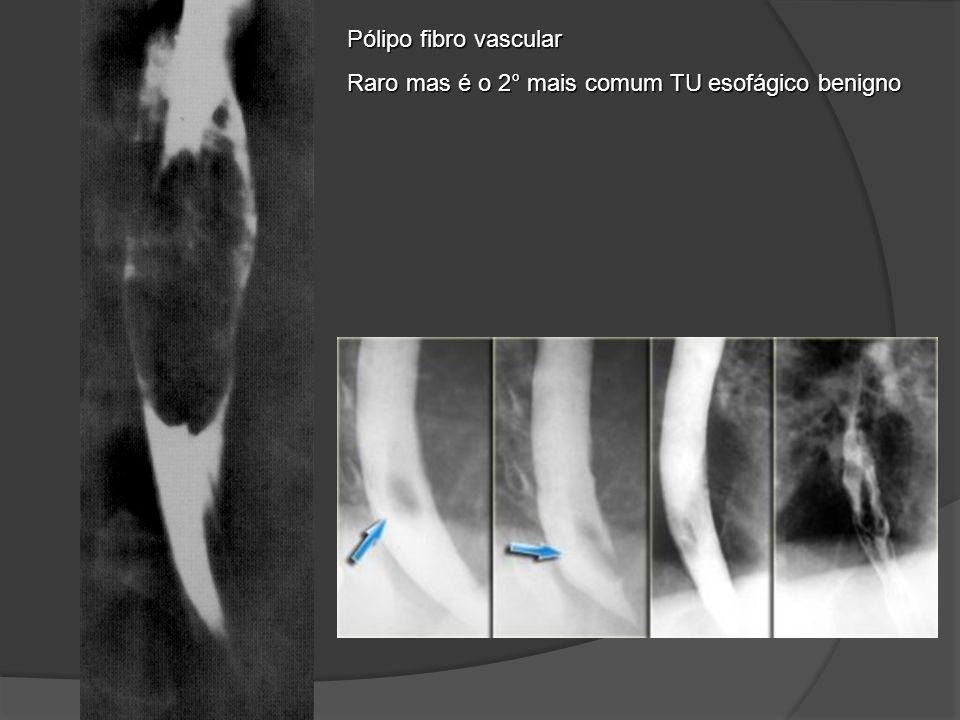 Pólipo fibro vascular Raro mas é o 2° mais comum TU esofágico benigno