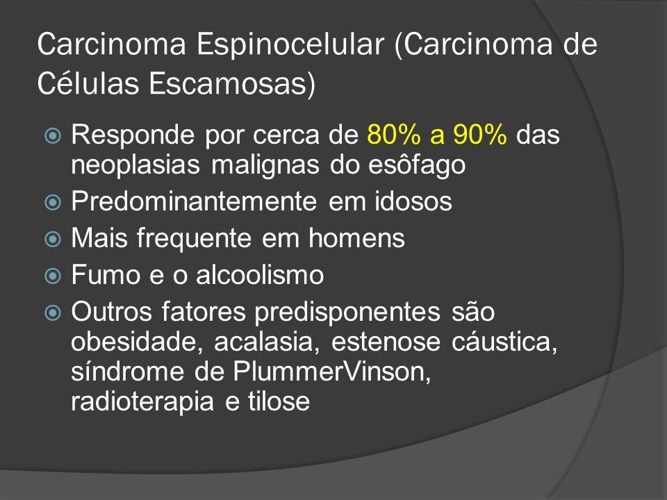 Carcinoma Espinocelular (Carcinoma de Células Escamosas) Responde por cerca de 80% a 90% das neoplasias malignas do esôfago Predominantemente em idoso