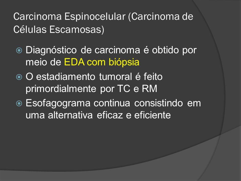 Carcinoma Espinocelular (Carcinoma de Células Escamosas) Diagnóstico de carcinoma é obtido por meio de EDA com biópsia O estadiamento tumoral é feito