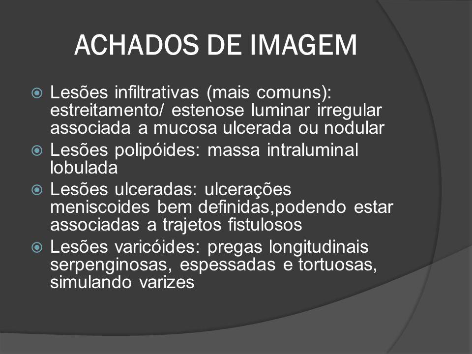 ACHADOS DE IMAGEM Lesões infiltrativas (mais comuns): estreitamento/ estenose luminar irregular associada a mucosa ulcerada ou nodular Lesões polipóid