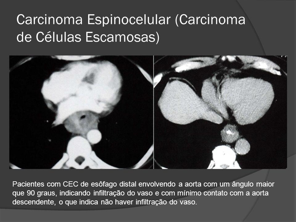 Carcinoma Espinocelular (Carcinoma de Células Escamosas) Pacientes com CEC de esôfago distal envolvendo a aorta com um ângulo maior que 90 graus, indi