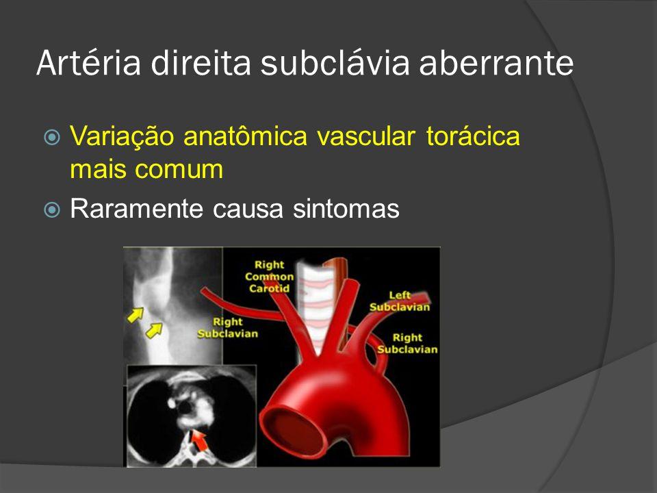 Impressão posterior do esôfago que corre para cima e para a D Artéria subclávia a D aberrante surge do arco aórtico e cruza o mediastino atrás do esôfago Artéria direita subclávia aberrante