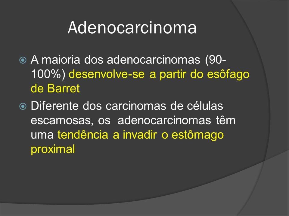 Adenocarcinoma A maioria dos adenocarcinomas (90- 100%) desenvolve-se a partir do esôfago de Barret Diferente dos carcinomas de células escamosas, os