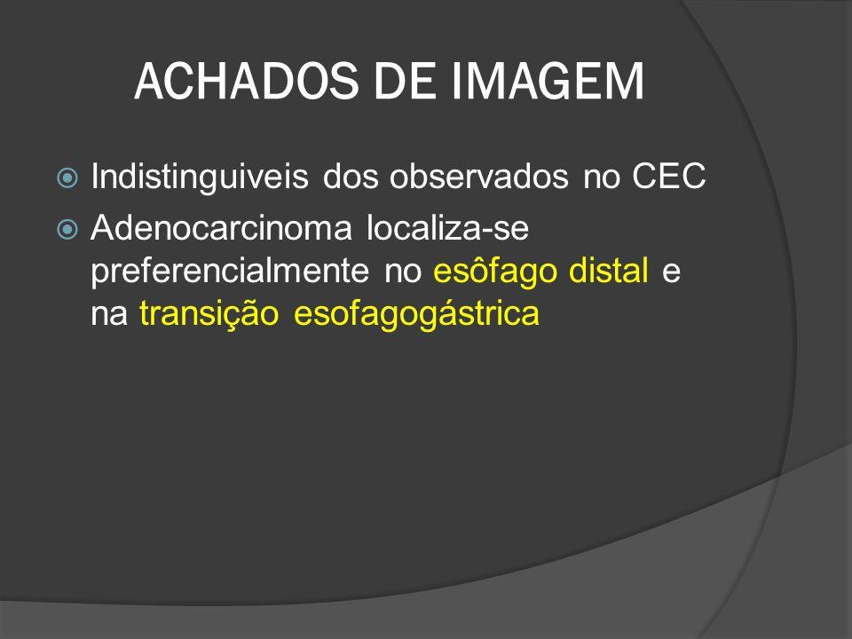 ACHADOS DE IMAGEM Indistinguiveis dos observados no CEC Adenocarcinoma localiza-se preferencialmente no esôfago distal e na transição esofagogástrica