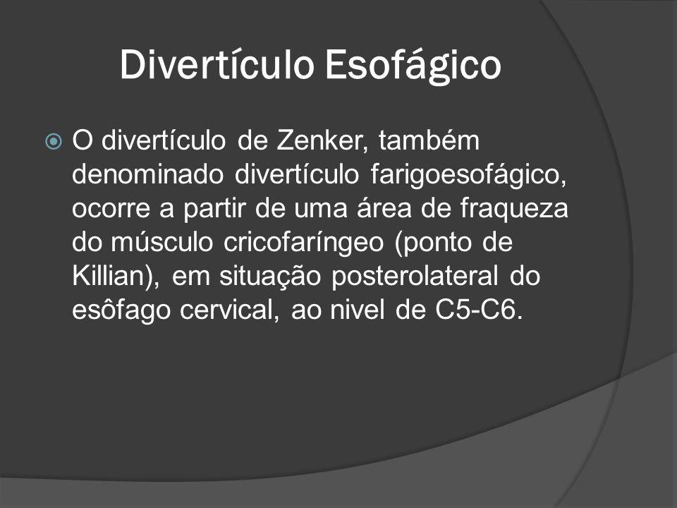 Divertículo Esofágico O divertículo de Zenker, também denominado divertículo farigoesofágico, ocorre a partir de uma área de fraqueza do músculo crico