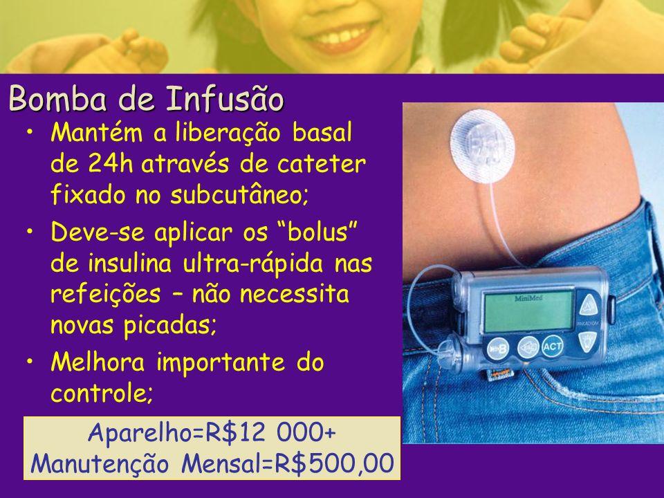Bomba de Infusão Mantém a liberação basal de 24h através de cateter fixado no subcutâneo; Deve-se aplicar os bolus de insulina ultra-rápida nas refeiç