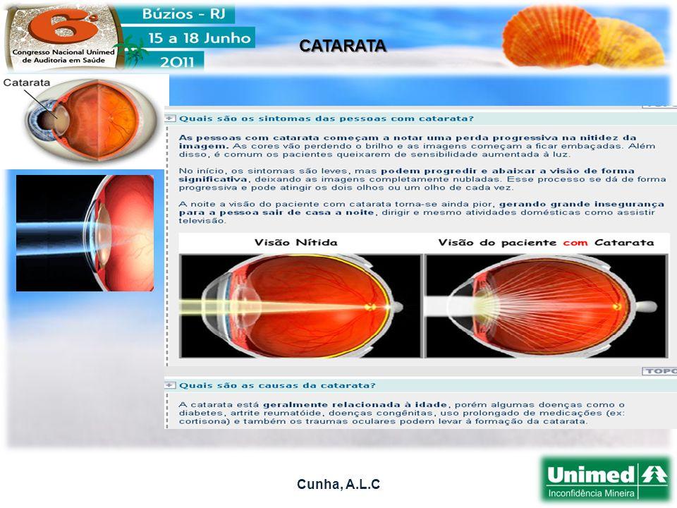 Cunha, A.L.C CATARATA