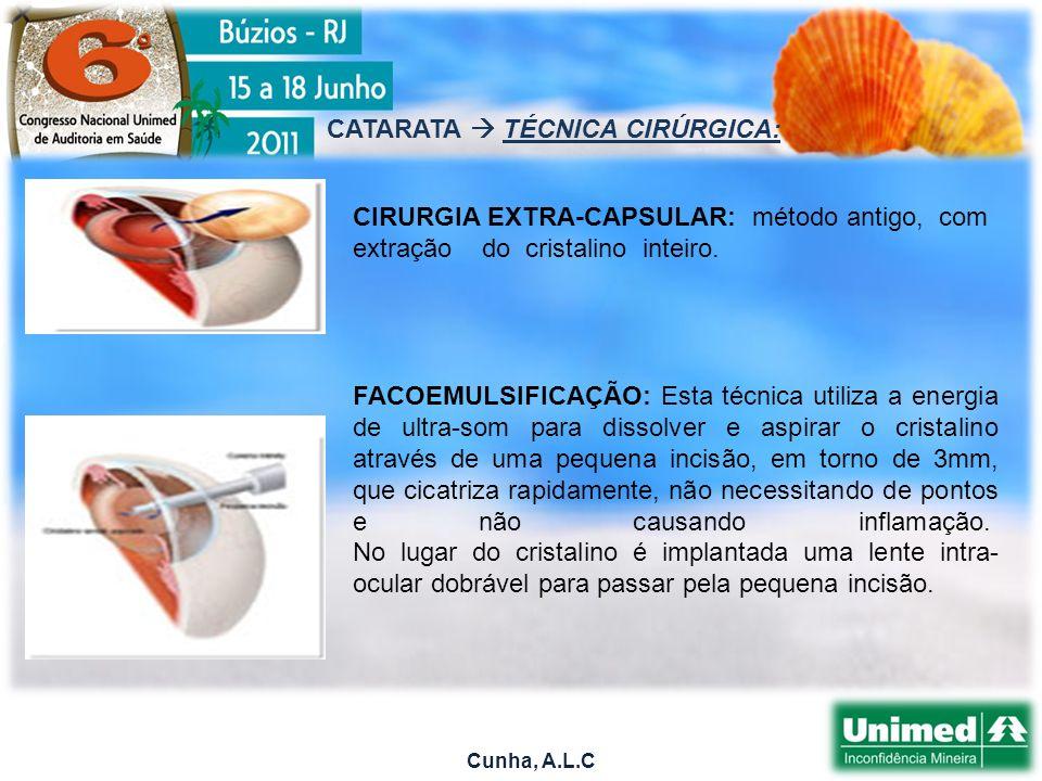 Cunha, A.L.C CATARATA TÉCNICA CIRÚRGICA: CIRURGIA EXTRA-CAPSULAR: método antigo, com extração do cristalino inteiro.
