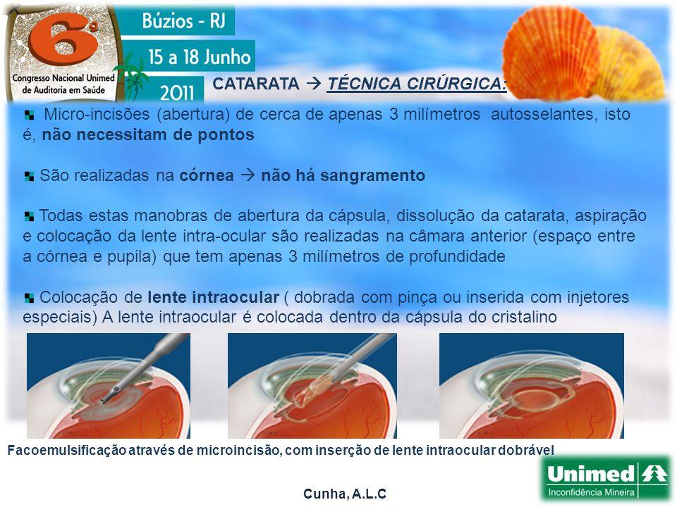 Cunha, A.L.C Micro-incisões (abertura) de cerca de apenas 3 milímetros autosselantes, isto é, não necessitam de pontos São realizadas na córnea não há sangramento Todas estas manobras de abertura da cápsula, dissolução da catarata, aspiração e colocação da lente intra-ocular são realizadas na câmara anterior (espaço entre a córnea e pupila) que tem apenas 3 milímetros de profundidade Colocação de lente intraocular ( dobrada com pinça ou inserida com injetores especiais) A lente intraocular é colocada dentro da cápsula do cristalino CATARATA TÉCNICA CIRÚRGICA: Facoemulsificação através de microincisão, com inserção de lente intraocular dobrável