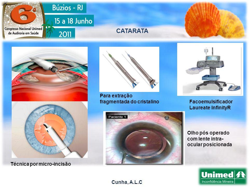 Cunha, A.L.C CATARATA Técnica por micro-incisão Para extração fragmentada do cristalino Facoemulsificador Laureate InfinityR Olho pós operado com lente intra- ocular posicionada