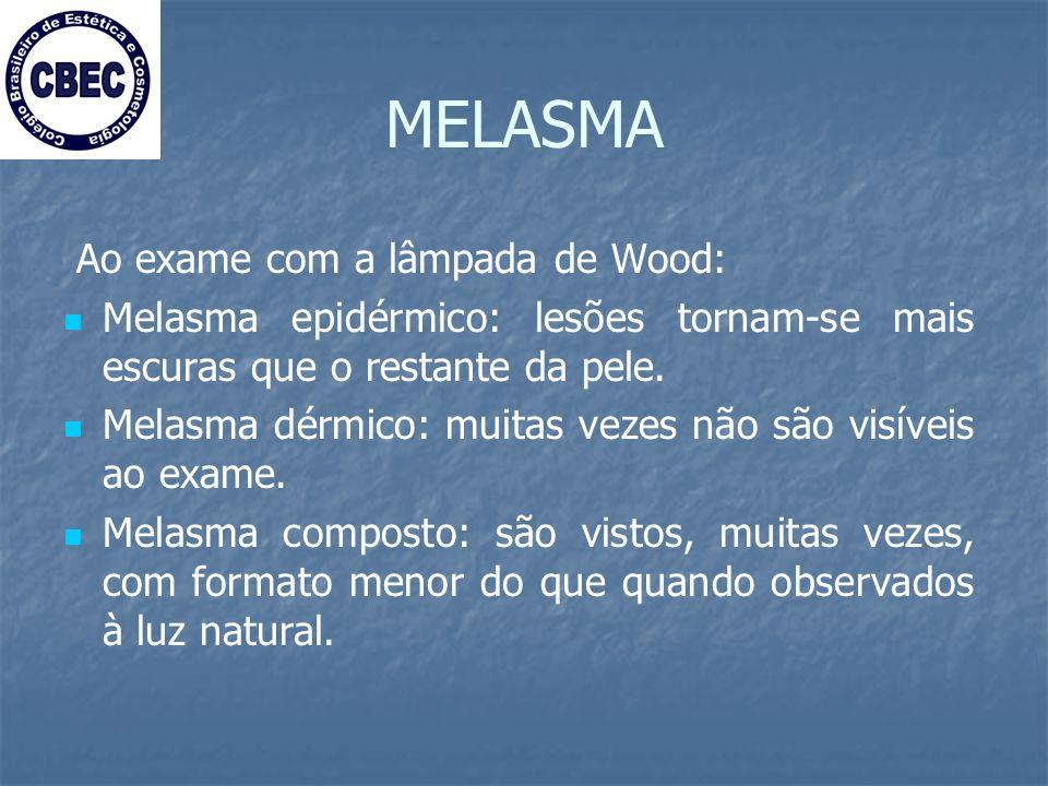 MELASMA Ao exame com a lâmpada de Wood: Melasma epidérmico: lesões tornam-se mais escuras que o restante da pele.