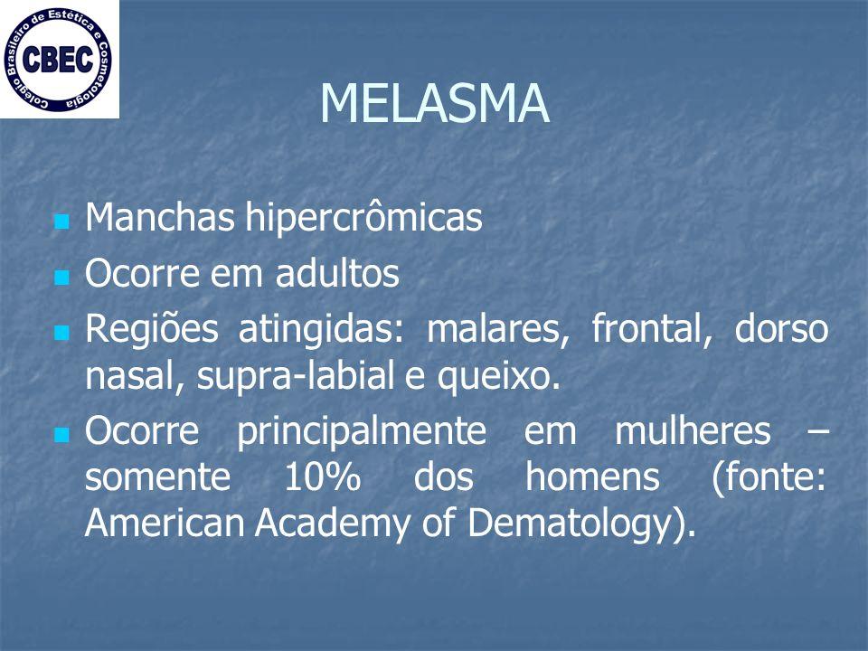 MELASMA Manchas hipercrômicas Ocorre em adultos Regiões atingidas: malares, frontal, dorso nasal, supra-labial e queixo.