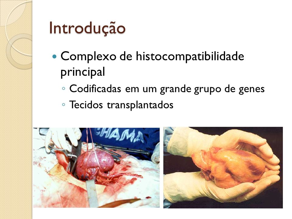 Introdução Complexo de histocompatibilidade principal Codificadas em um grande grupo de genes Tecidos transplantados