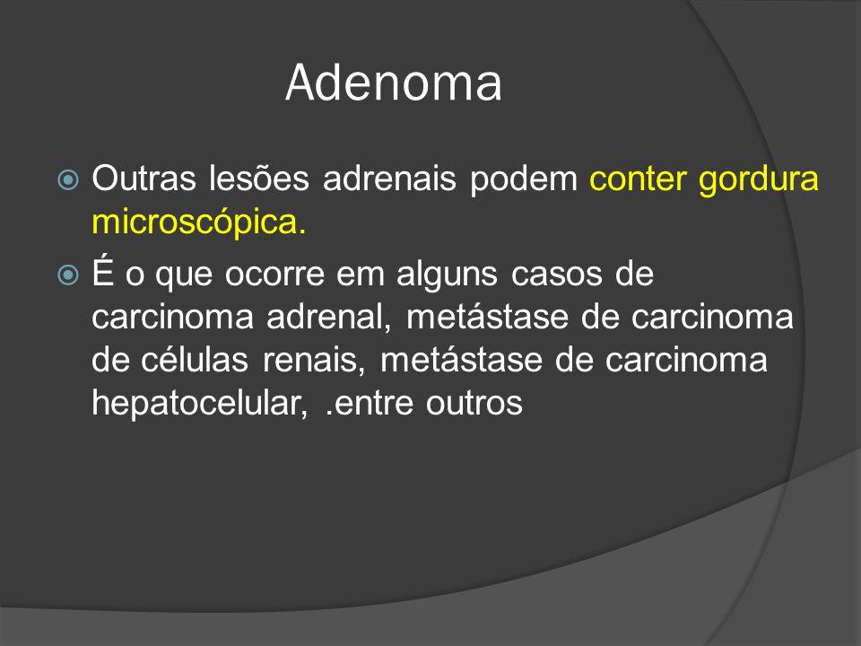 Adenoma Outras lesões adrenais podem conter gordura microscópica.