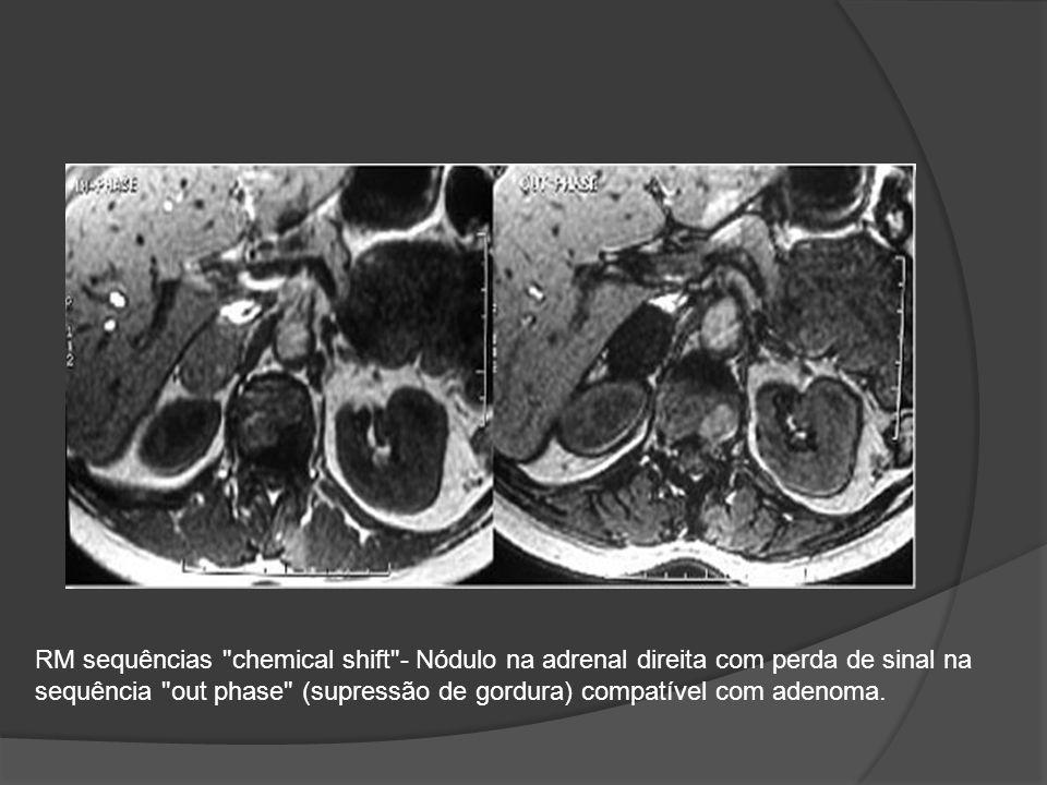 RM sequências chemical shift - Nódulo na adrenal direita com perda de sinal na sequência out phase (supressão de gordura) compatível com adenoma.