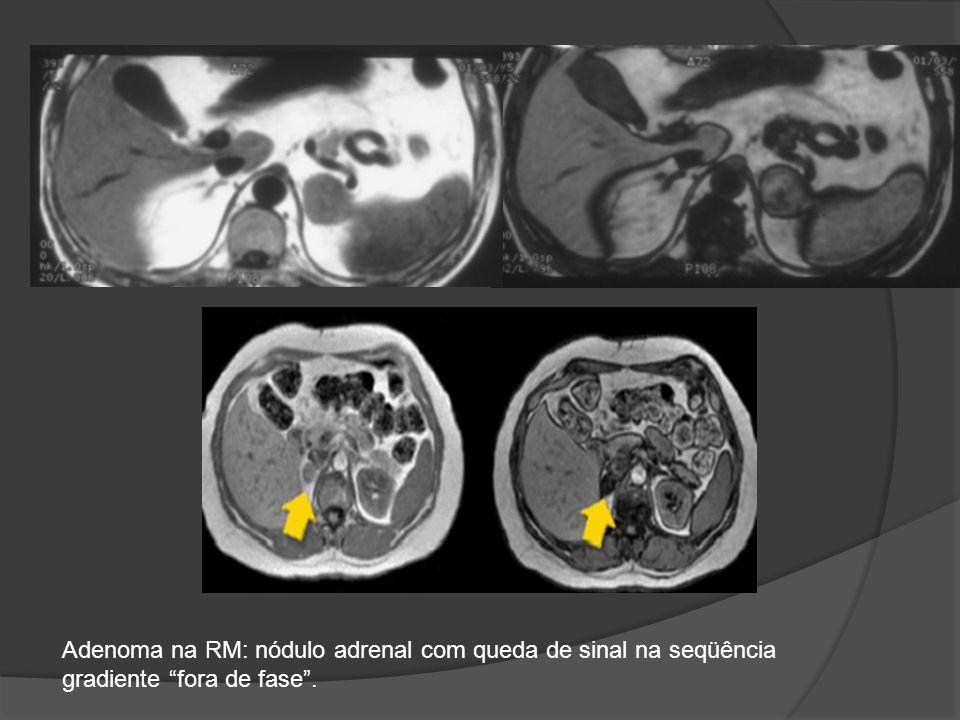 Adenoma na RM: nódulo adrenal com queda de sinal na seqüência gradiente fora de fase.