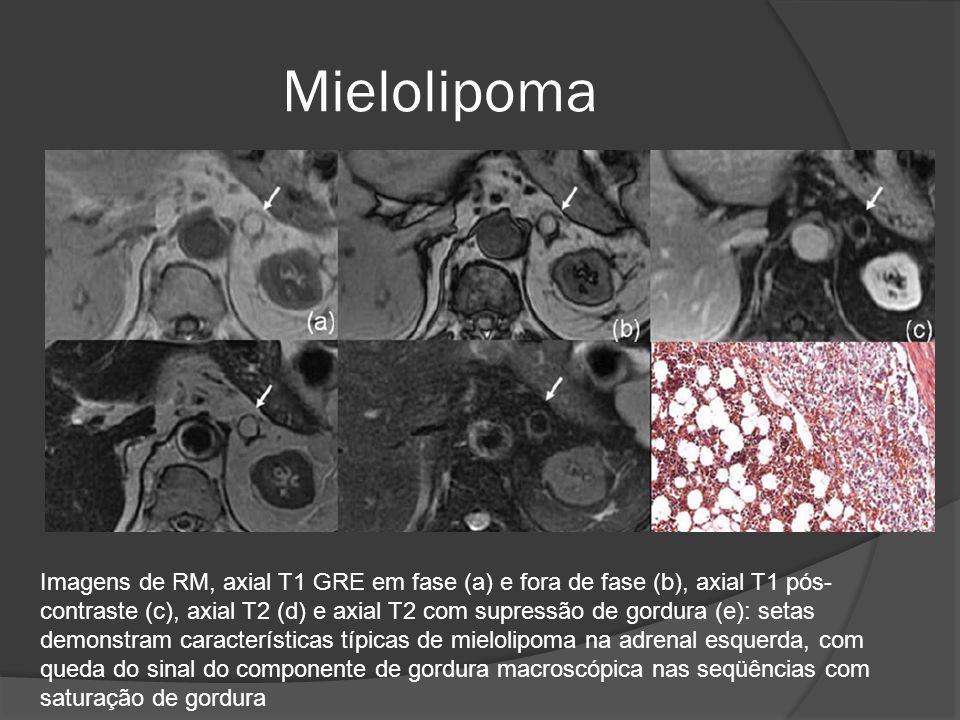 Imagens de RM, axial T1 GRE em fase (a) e fora de fase (b), axial T1 pós- contraste (c), axial T2 (d) e axial T2 com supressão de gordura (e): setas demonstram características típicas de mielolipoma na adrenal esquerda, com queda do sinal do componente de gordura macroscópica nas seqüências com saturação de gordura