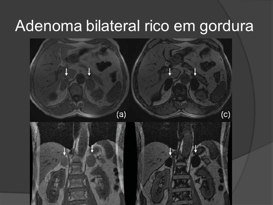 Adenoma bilateral rico em gordura