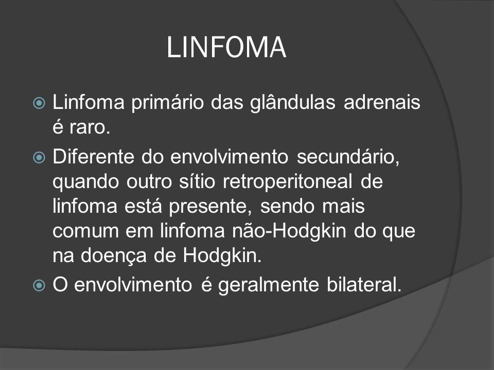 LINFOMA Linfoma primário das glândulas adrenais é raro.
