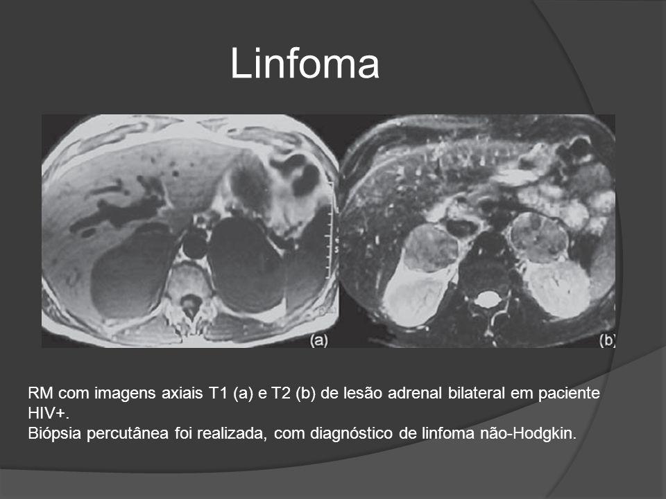 Linfoma RM com imagens axiais T1 (a) e T2 (b) de lesão adrenal bilateral em paciente HIV+.